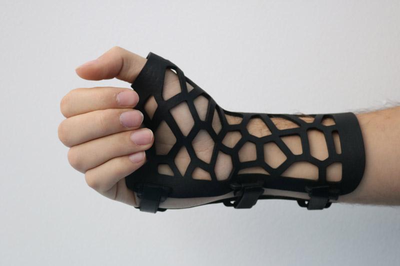 Férula brazo